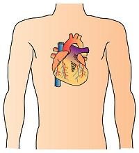 心臓カテーテル手術