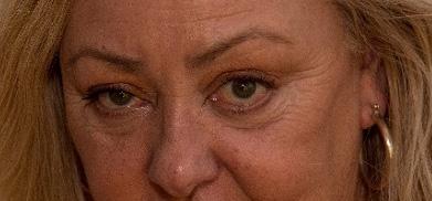目の下のたるみは老け顔に見える