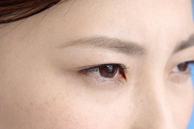 美容整形で目の下のたるみを消す方法とは
